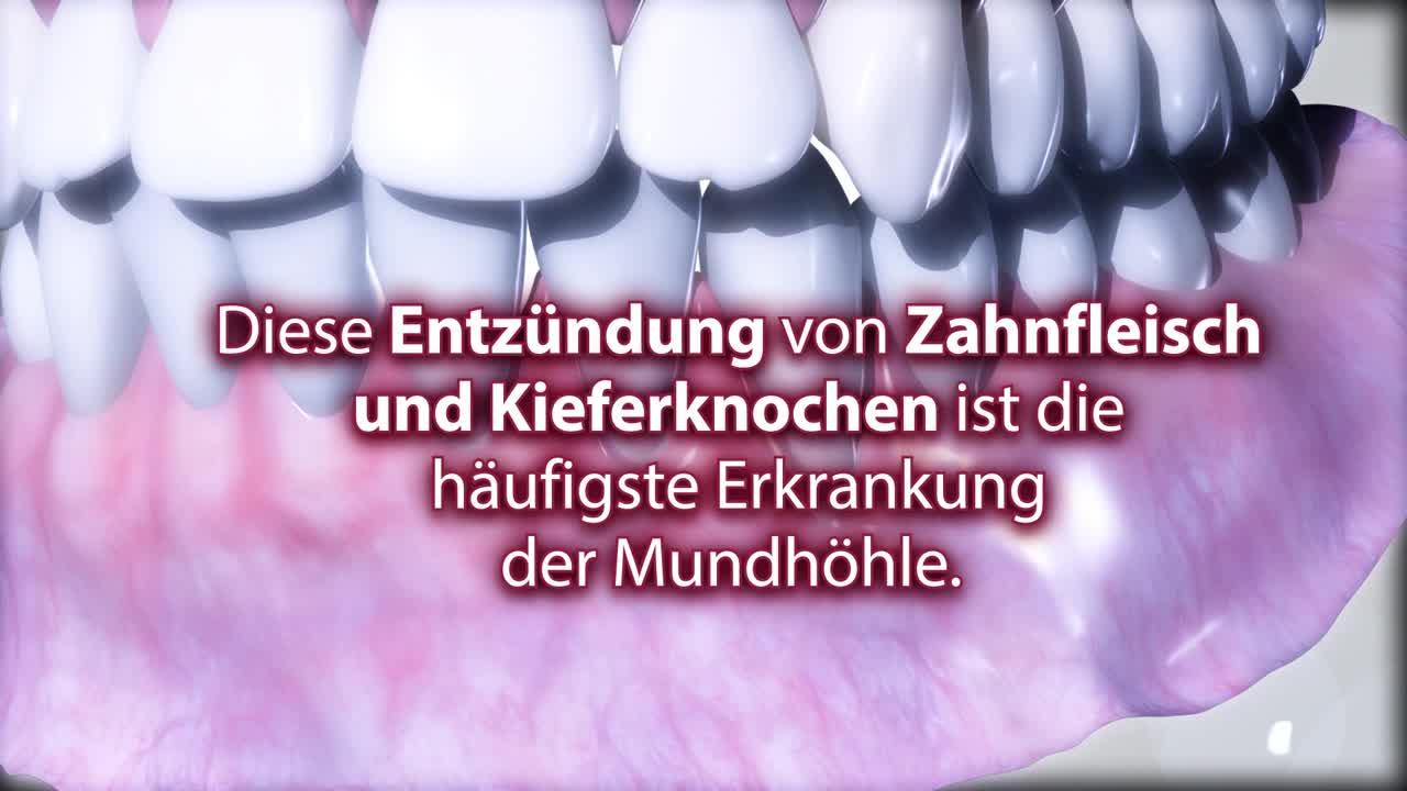 Parodontitis-Behandlung