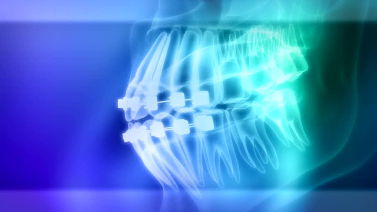 Erwachsenen-Therapie Fehlstellung Zähne