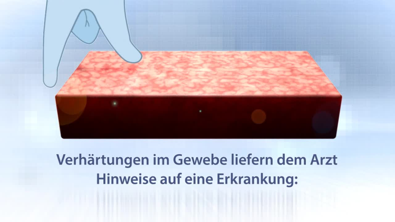 Elastographie (Prostata)