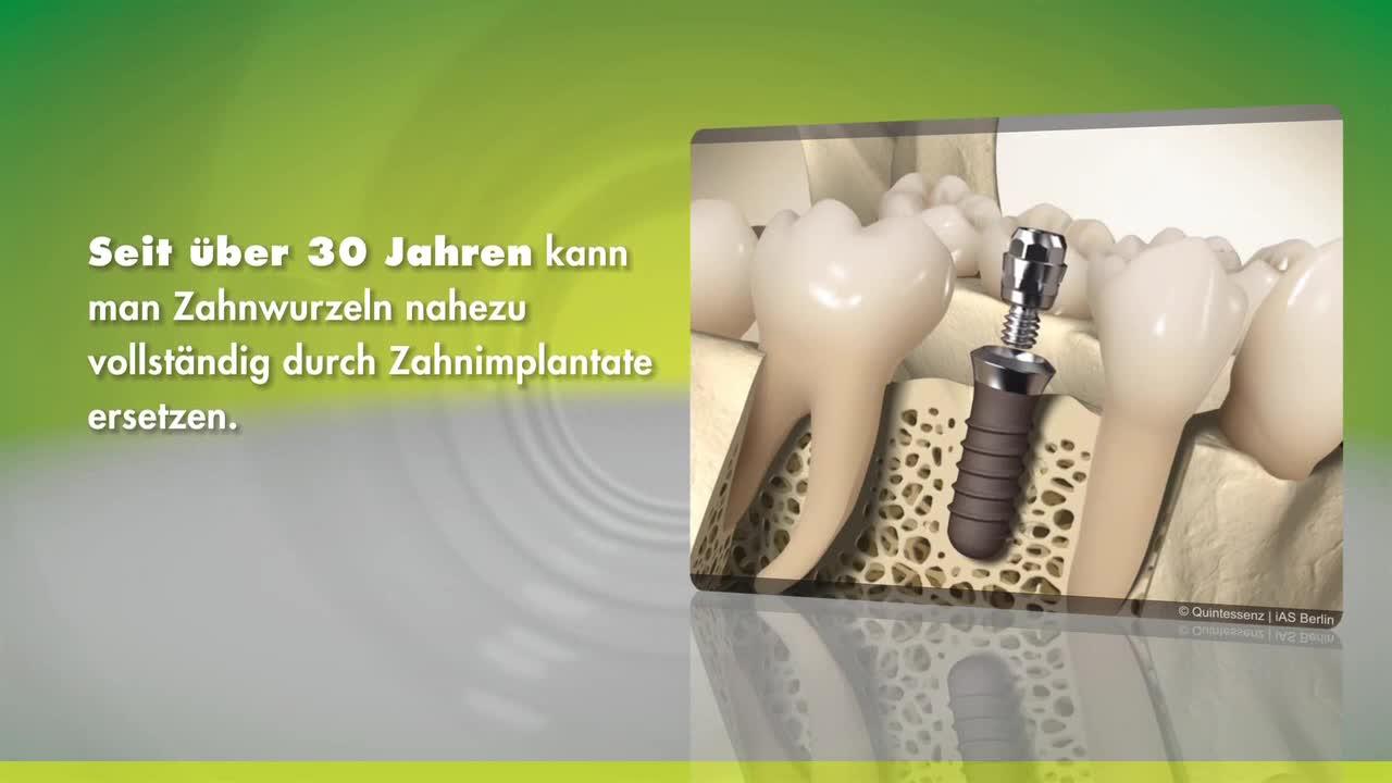 Implantate (Straumann) [Champions-Implantate]