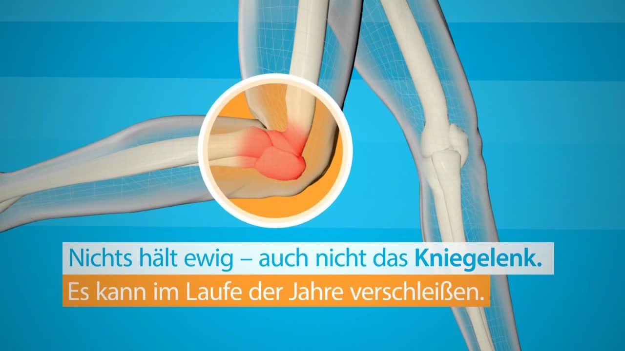Endoprothetik Knie (Individual-Prothese)