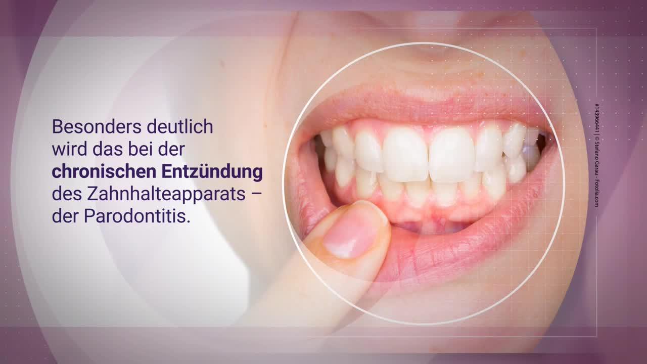 Parodontitis und Allgemeingesundheit (BLZK) [Tonfassung]