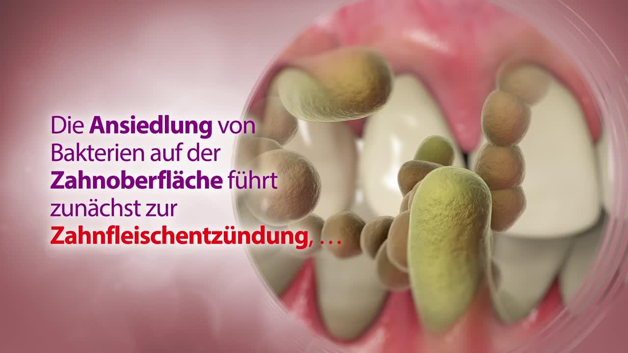 Geschlossene Parodontal-Therapie (Deep Scaling)